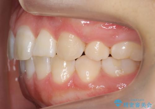 よくある悩み 前歯が裏に2本入っているのを治したいの治療後