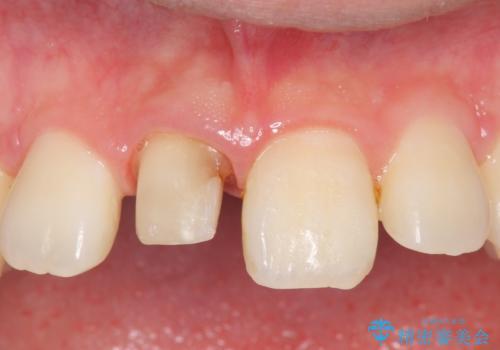 オールセラミッククラウン 変色した前歯の治療中