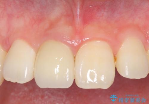 オールセラミッククラウン 変色した前歯の症例 治療後