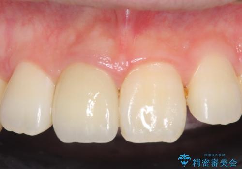 オールセラミッククラウン 変色した前歯の治療後