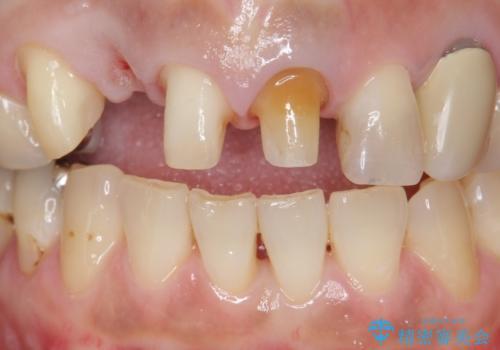 オールセラミッククラウン 下がってしまった前歯の歯茎の改善の治療中