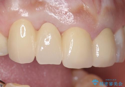 オールセラミッククラウン 下がってしまった前歯の歯茎の改善の治療後
