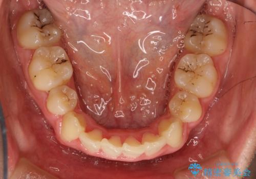 全体的ながたつき ワイヤーによる抜歯矯正で整った歯並びへの治療後