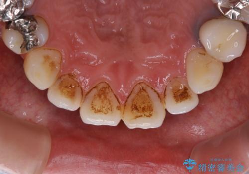 虫歯治療を始める前のPMTCの治療前