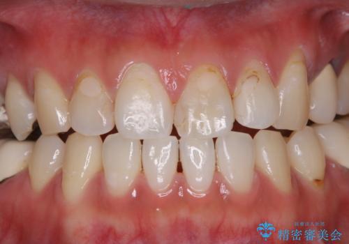虫歯治療を始める前のPMTCの治療後