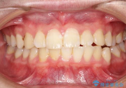 口臭予防にPMTCでお口のケアの治療前