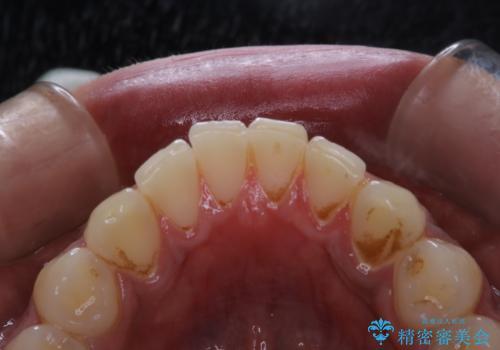 歯についたタバコのヤニをPMTCで綺麗にの治療前