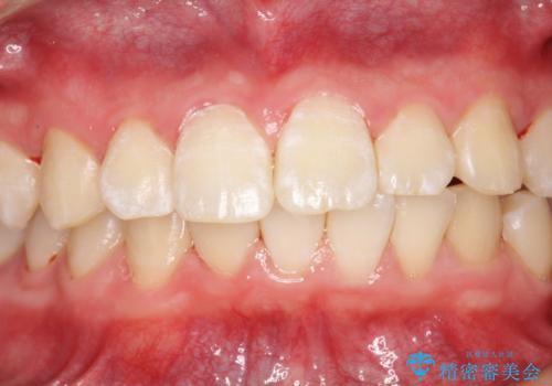 口臭予防にPMTCでお口のケアの治療後