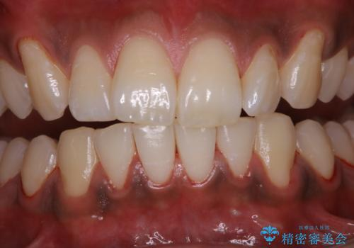 歯についたタバコのヤニをPMTCで綺麗にの症例 治療後