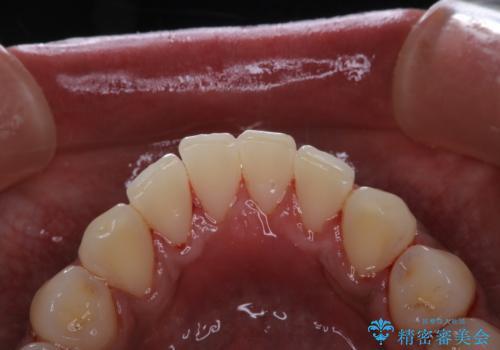 歯についたタバコのヤニをPMTCで綺麗にの治療後
