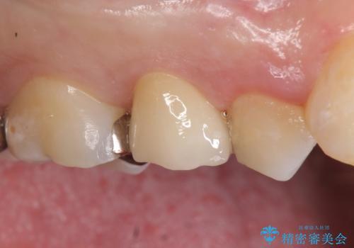 オールセラミッククラウン 銀歯を白くの症例 治療後