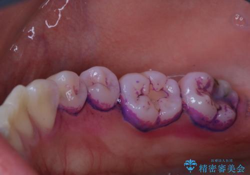 磨きにくい奥歯の歯磨き指導とPMTCの治療前