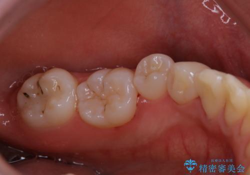磨きにくい奥歯の歯磨き指導とPMTCの治療後