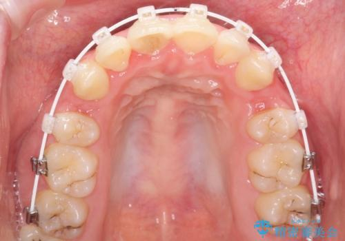 全体的ながたつき ワイヤーによる抜歯矯正で整った歯並びへの治療中