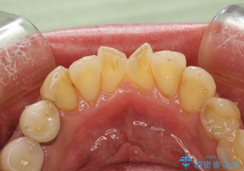 歯と歯の間の着色除去の治療前