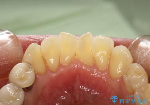 歯と歯の間の着色除去の治療後