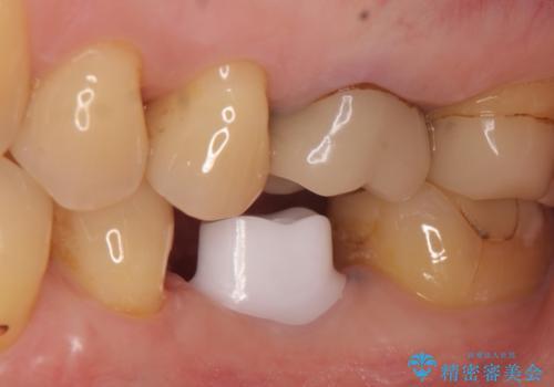 インプラント 割れてしまった歯の治療の治療中
