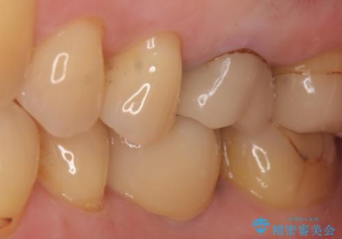 インプラント 割れてしまった歯の治療の治療後
