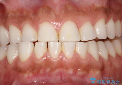 PMTCでお口のメンテナンスの治療前
