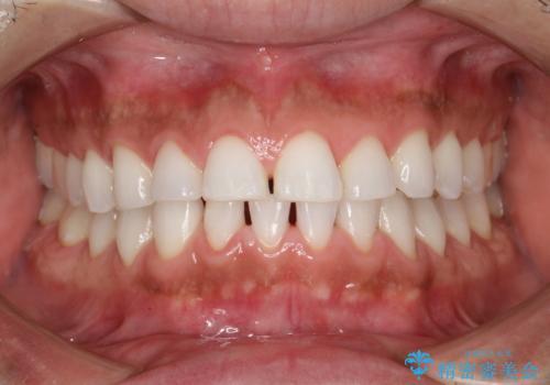 PMTCでお口のメンテナンスの治療後