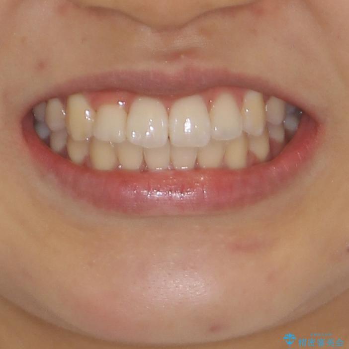 短期間で治療したい 目立たないワイヤー装置での非抜歯矯正の治療後(顔貌)