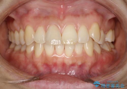 お口のさっぱり感とツルツル感をPMTCでの治療後