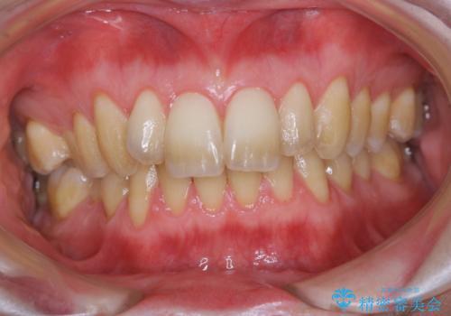 久しぶりの歯科医院にて歯のクリーニングの治療前