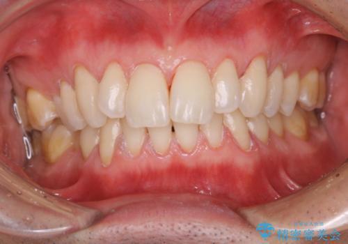 久しぶりの歯科医院にて歯のクリーニングの治療後