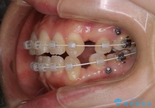 ワイヤー矯正中のPMTCの治療前