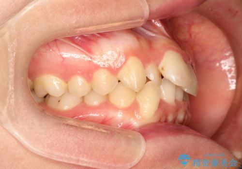 全体的ながたつき ワイヤーによる抜歯矯正で整った歯並びへの治療前