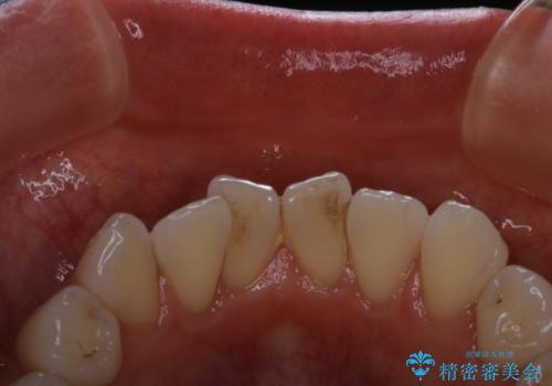 前歯の裏側の着色落としをPMTCでキレイにの症例 治療前