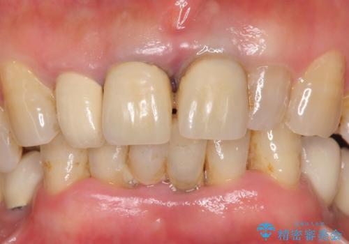 前歯が抜けそう ブリッジできれいに 70代女性の症例 治療前