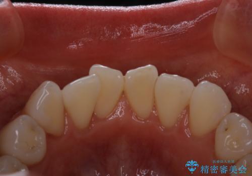 前歯の裏側の着色落としをPMTCでキレイにの症例 治療後