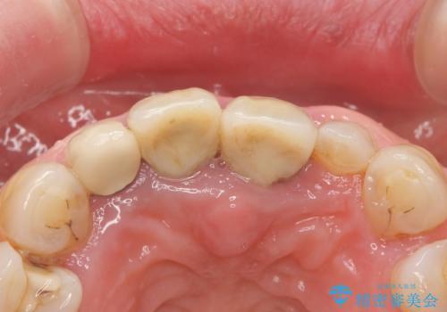 前歯が抜けそう ブリッジできれいに 70代女性の治療前