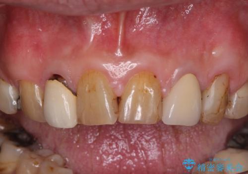 統一感のない前歯を綺麗にしたい 前歯のオールセラミックの治療前