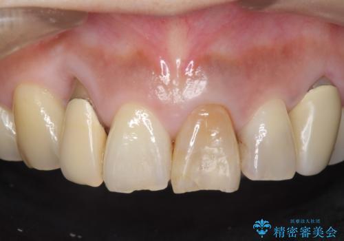 オールセラミッククラウン 下がってしまった前歯の歯茎の改善の治療前