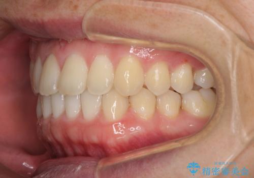 すきっ歯の改善 インビザライン矯正治療の治療中