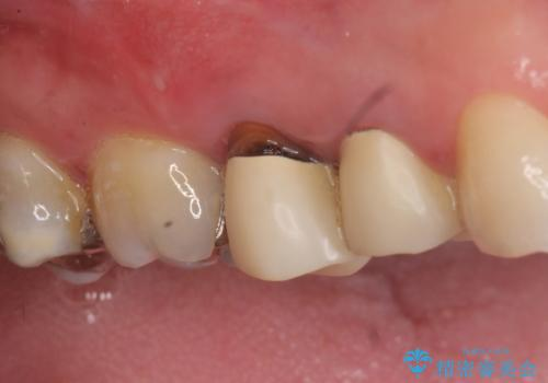 オールセラミッククラウン 歯根破折→抜歯→ブリッジの症例 治療前