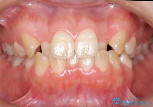 よくある悩み 前歯が裏に2本入っているのを治したいの症例 治療前