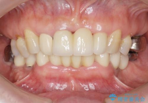 前歯が抜けそう ブリッジできれいに 70代女性の治療後