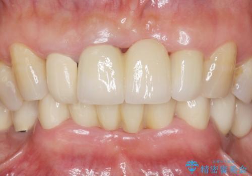 前歯が抜けそう ブリッジできれいに 70代女性の症例 治療後