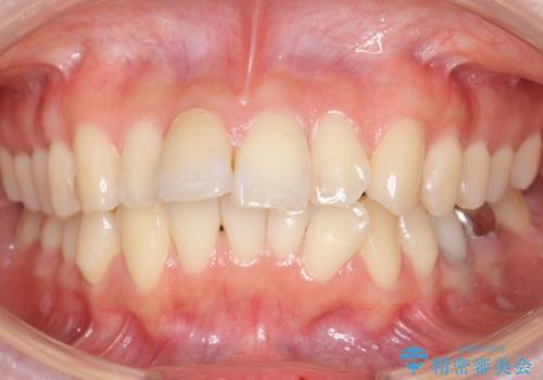 「整形した?」と言われるほどの変化! 口元を矯正治療で改善 鼻を高くしたわけでも、アゴに何か入れたわけでもありません。の症例 治療前