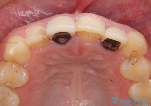 オールセラミッククラウン(スペシャル) 前歯を綺麗にの治療前
