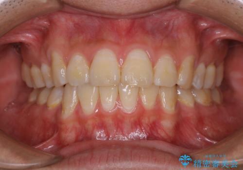 定期健診で歯のクリーニング PMTCの治療前