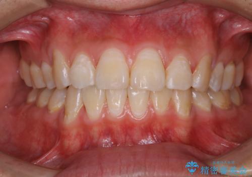 定期健診で歯のクリーニング PMTCの治療後