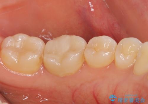 奥歯が痛い 根管治療とオールセラミッククラウンの治療前