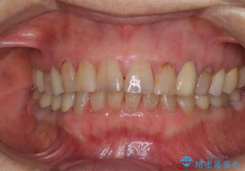 全ての奥歯の銀歯をセラミックに メタルフリー治療の治療後
