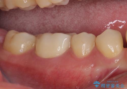 奥歯の目立つ銀歯が気になる 奥歯のセラミッククラウンの治療後