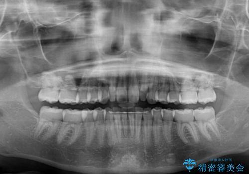 前歯のデコボコを治したい インビザラインによる矯正治療の治療後