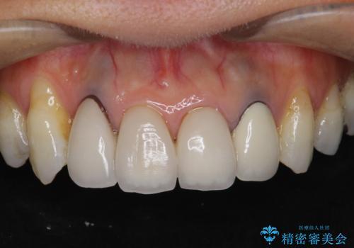 歯ぐきの黒ずみ クラウンやりかえによる改善の症例 治療前